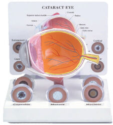 Cataract Eye Model