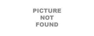 Timolol Maleate Ophthalmic Solution